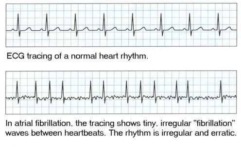 EKG of normal heart beat, and heart in A-Fib
