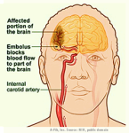 Illustration - A-Fib creates an increased risk of Stroke - atrial fibrillation, afib, a fib
