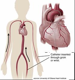 Catheter Insertion points for Pulmonary Vein Isolation - PVI - Atrial Fibrillation - A-Fib.com, A-Fib, a fib, afib
