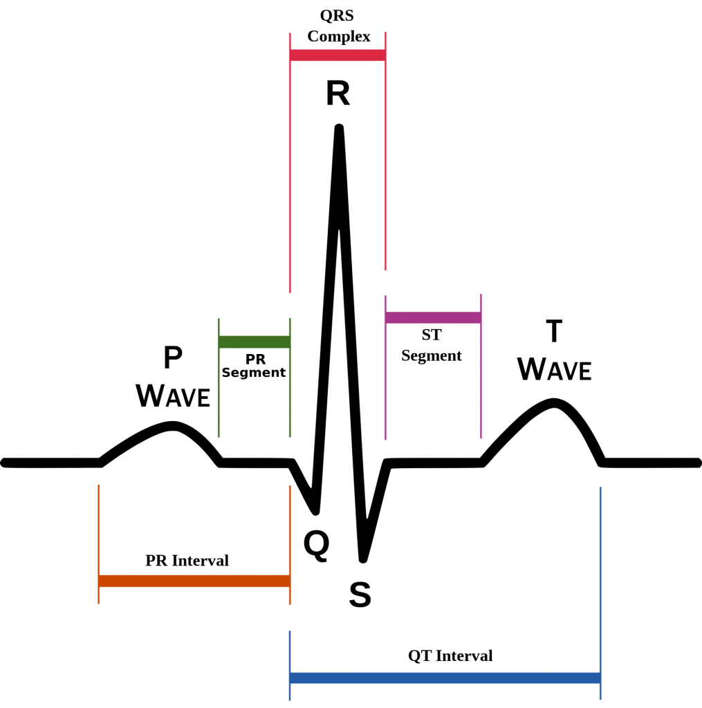 Schematic diagram of normal sinus rhythm for a human heart as seen on ECG; Public Domain image;