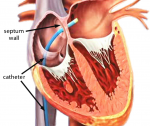 Catheter inserted into the heart and through septum wall into Left Atrium