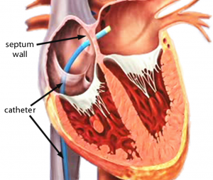 Catheter inserted into the heart and through septum wall into Left Atria
