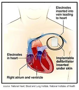 Implantable cardioverter defibrillator (ICD) for Atrial Fibrillation, A-fib, afib, a fib
