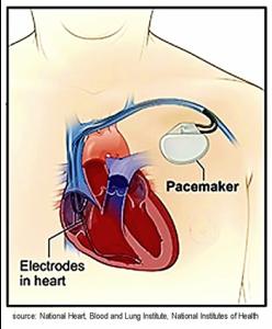 Illustration of Pacemaker for Atrial Fibrillation, A-fib, afib, a fib
