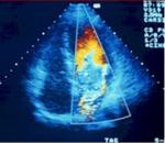 Transesophageal Echocardiology, TEE - Atrial Fibrillation test, A-fib, afib, a fib
