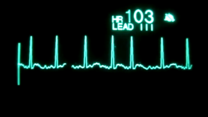 VIDEO: EKG display of heart in Atrial Fibrillation, A-Fib