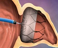 The Watchman occlusion device