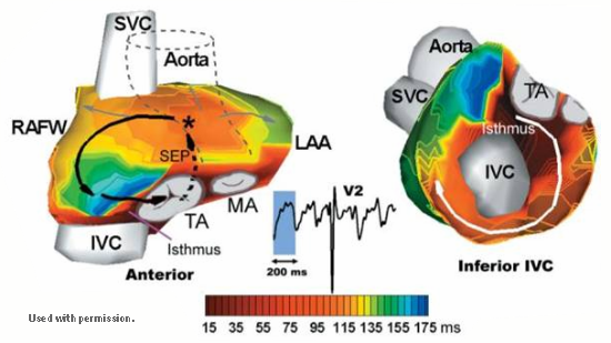 Graphic: Non-invasive activation sequence during Atrial Flutter.