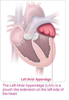 Left Atrial Appendage heart illustration; Source: Boston Scientific Inc. educational brochure