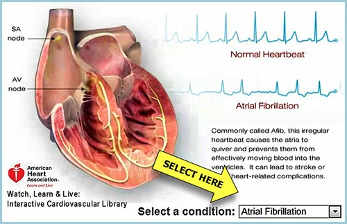 Click to visit AHA Heart Animation website