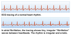 ECG tracing of normal heart rhythm and heart in A-Fib; Copyright 2012 A-Fib, Inc.