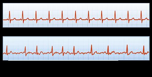 ECG tracing of normal heart rhythm and heart in A-Fib; Copyright 2012 A-Fib, Inc.