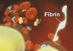 Video: Insight to A-Fib the Most Common Arrhythmia