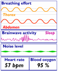 Data collected in a typical sleep study
