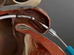 The LARIAT for Left Atrial Appendage Closure