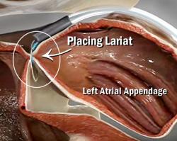 Video frame: Lariat being placed - A-Fib.com