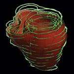 The Virtual Heart  - Trayanova - 250 pix at 96 res