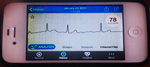 Frances Koepnick photo 2: iPhone 4S - AliveCor ECG Recording with Heart Rate in BPM