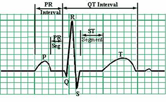 Heart-Rhythm-Monitors-EKG - 325 pix wide at 96 res