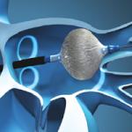 CryoBalloon catheter