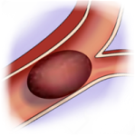 Stroke - Blood vessel with clot