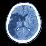 CT brain with Ischemic stroke at A-Fib.com