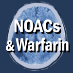 CT scan - Ischemic Stroke - NOAC and Warfarin at A-Fib.com
