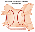 PVAI - Ccommon lesion set at A-Fib.com