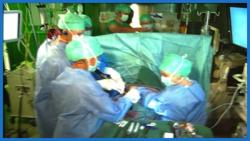 MAM 2016 Live video feed of A-Fib surgery at A-Fib.com