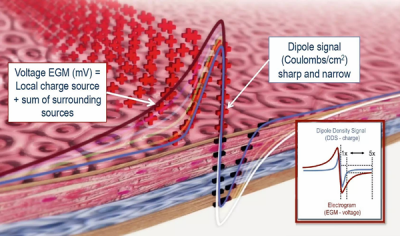 Acutus Medical Illustration: localized charge (Dipole Density) with the sum of the surrounding sources