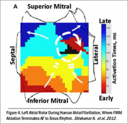 FIRM mapping display of left atrial rotor during atrial fibrillation.