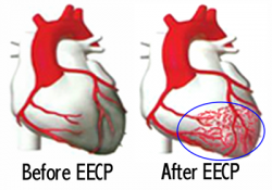 Effect of EECP therapy at A-Fib.com