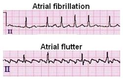 Illustration: Healio 'Atrial Fibrillation ECG Review'